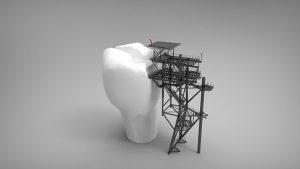 האם נמצא פתרון כלכלי הולם בעולם השתלות השיניים?