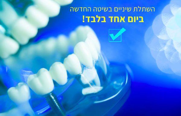 השתלות שיניים – אילו סוגי השתלות קיימים ומה חשוב לדעת לגבי כל סוג שתל?